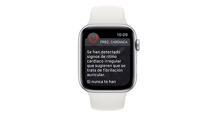 Apple Watch ECG app