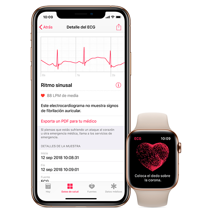 ECG en el Apple Watch